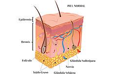 La lucha contra el acné